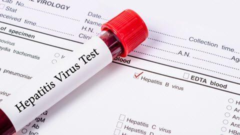 Hepatitis Screening